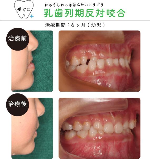 乳歯列期反対咬合