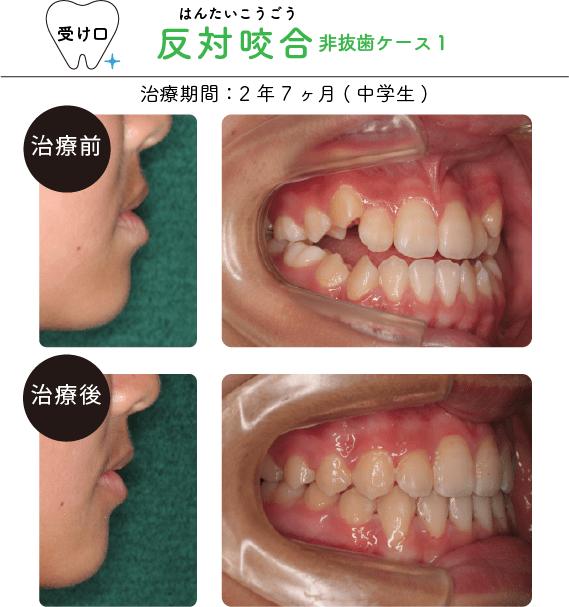 反対咬合非抜歯ケース1
